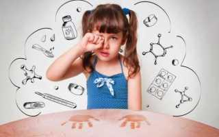 Аллергия на клеща домашней пыли у ребенка