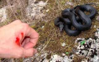 Что делать если укусила змея в лесу